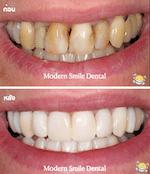 เปลี่ยนสีฟันจากคราบบุหรี่ พัทยา ศรีราชา
