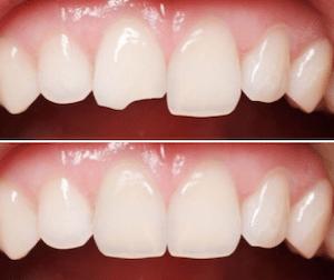 วีเนียร์ แก้ไข ฟันแตก ฟันบิ่น