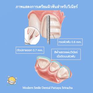 เตรียมฟันสำหรับ วีเนียร์