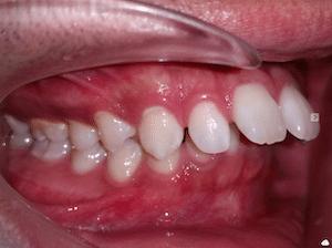 ฟันยื่น จัดฟัน พัทยา ศรีราชา