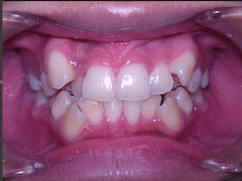 ฟันซ้อนเก จัดฟัน พัทยา ศรีราชา