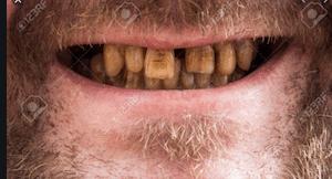 ฟันเปลี่ยนสีจากการสูบบุหรี่
