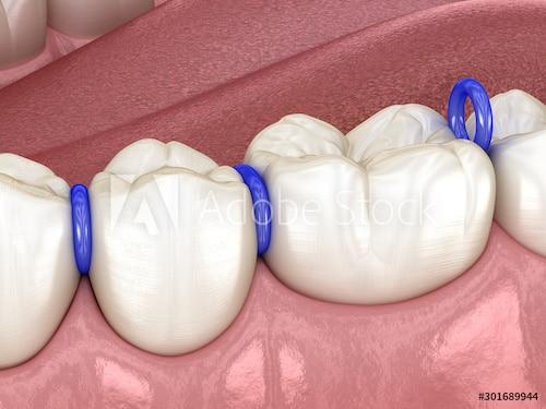 ยางแยกฟัน จัดฟัน