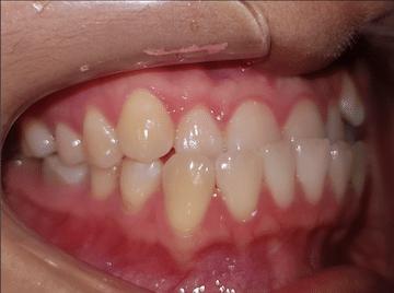 ฟันล่างคร่อมบน จัดฟัน ศรีราชา พัทยา