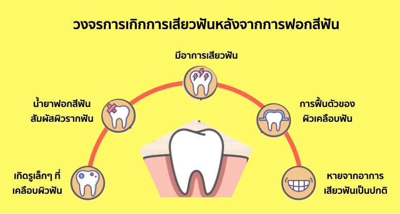 วงจรการเกิดอาการเสียวฟันหลังจากฟอกสีฟัน ซึ่งป้องกันได้