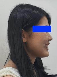 หลังการผ่าตัด จัดฟัน ศรีราชา พัทยา