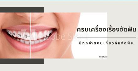 ความรู้เกี่ยวกับ ทันตกรรมจัดฟัน เพื่อช่วยในการตัดสินว่า ท่านเหมาะสมกับการจัดฟันแบบไหน ทุกแบบ มีข้อดี เสีย ต่างกันไป