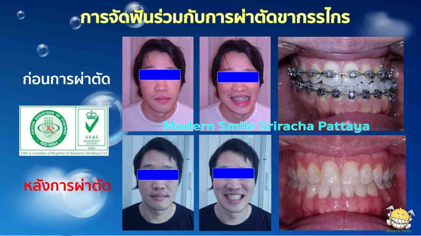 ทันตกรรมจัดฟันร่วมกับการผ่าตัดขากรรไกร ก่อน หลังการรักษา