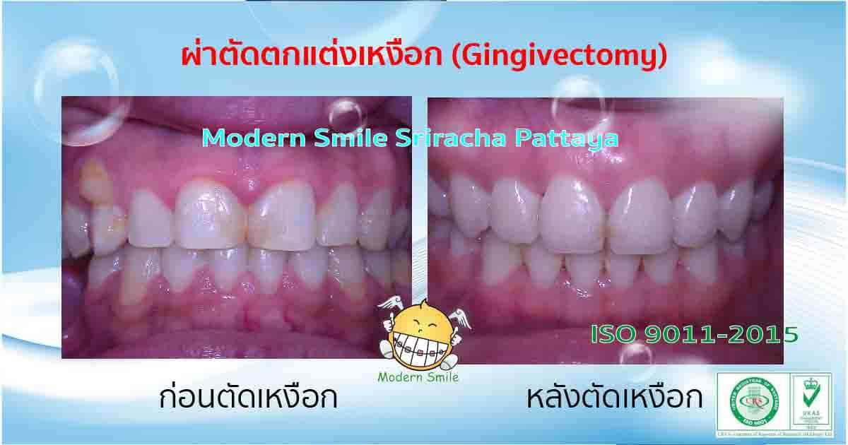 ก่อนและหลังการตัดเหงือก ทำให้ฟันดูยาวขึ้น