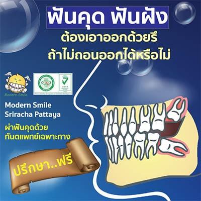ฟันคุด ฟันฝัง ต้องผ่าออกด้วยหรือ ไม่ผ่าออกได้หรือไม่