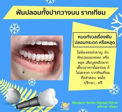 ฟันปลอมทั้งปากวางบน รากเทียม ฟันปลอมจะแน่นมาก ไมากระดก