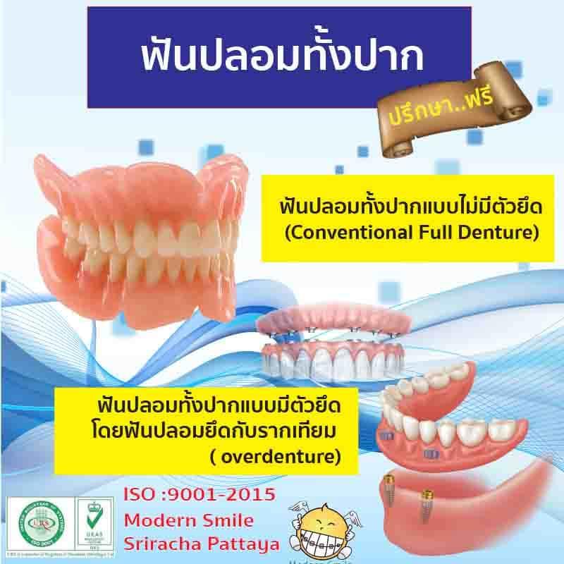ฟันปลอมทั้งปาก ถอดออกได้มี 2 แบบ คือ แบบไม่มีตัวยึด และ แบบมีตัวยึด
