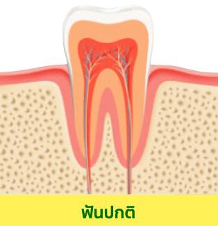 อุดฟัน ฟันผุแบบเริ่มต้น (ฟันที่เกือบจะผุ)ลักษณะจะเป็นแบบฟันเพิ่งเริ่มสูญเสียแร่ธาตุแคลเซี่ยม