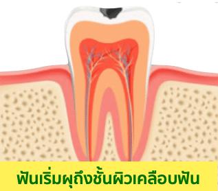 อุดฟัน ฟันผุแบบเริ่มต้น (ฟันที่เกือบจะผุ)