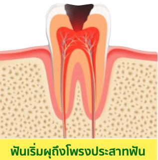 อุดฟัน ฟันผุแบบเป็นหลุมกินเข้าไปลึกมากขึ้น และทำลายจนมีการอักเสบลุกลามถึงโพรงประสาทฟัน