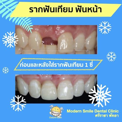 รากเทียม ฟันหน้า ช่วยป้องกันการยุบตัวของกระดูกทำให้ดูไม่แก่