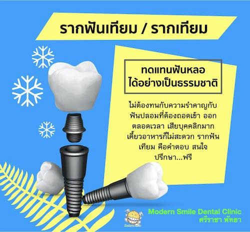 รากฟันเทียม หรือ รากเทียม คือ รากฟันเทียมที่ทำมาทดแทนรากฟันจริง