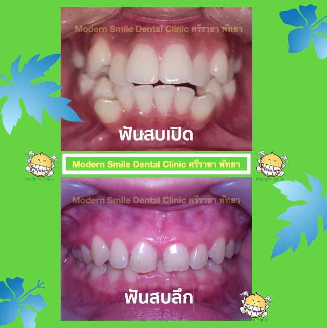 ลักษณะฟันที่ต้องการจัดฟัน แสดงการสบฟันที่ผิดปกติ ชนิดฟันสบเปิด ฟันสบลึก