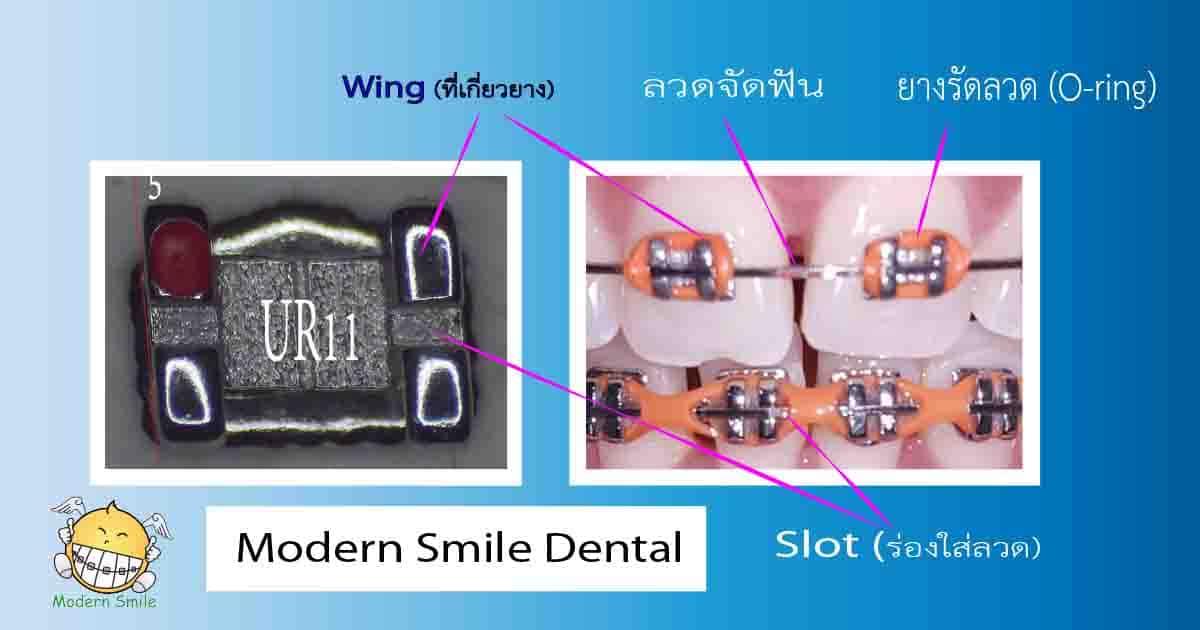 ส่วนประกอบของเครื่องมือจัดฟัน ประกอบด้วย แบร็คเก็ต ลวด ยางรัดลวด