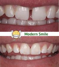 การปิดช่องว่างด้วย การอุดฟันแบบคอมโพสิต สามารถปิดช่องว่างที่ไม่กว้างมากได้อย่างสวยงาม
