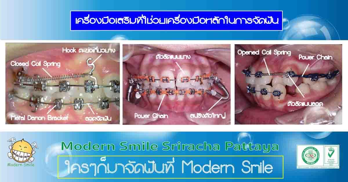 เครื่องมือช่วยสำหรับการจัดฟันแบบโลหะ เช่น สปริงต่างๆ ยางรัดฟัน เชน แบร็คเก็ต