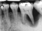 โรคเหงือก ติดเชื้อที่ปลายรากฟัน ต้องรักษารากฟัน ร่วมกับการรักษาโรคเหงือก
