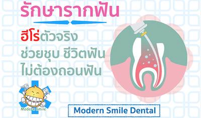 รักษารากฟัน ฮีโร่ตัวจริงชุบชิวิตฟัน ไม่ต้องถอนฟันออก