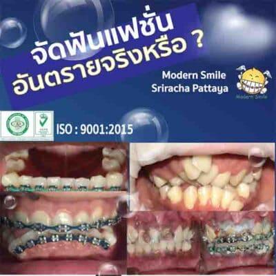จัดฟันแฟชั่น อันตราย จริงหรือ จัดฟันแฟชั่นคือการที่ติดเครื่องมือจัดฟันแบบโลหะ
