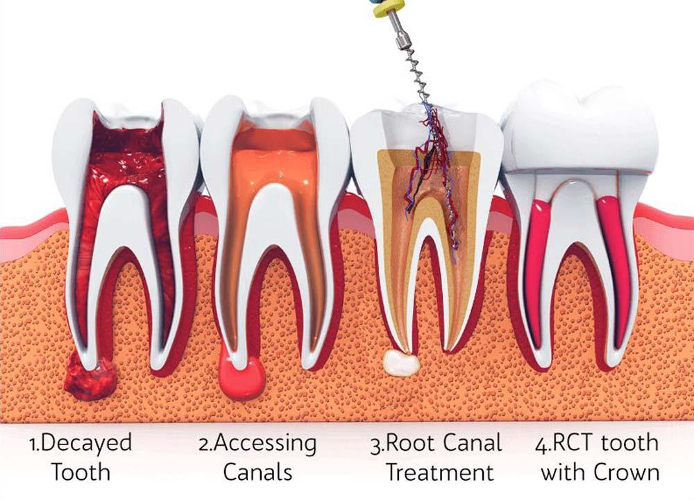 รักษารากฟัน พัทยา