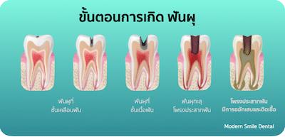 ขั้นตอนการเกิดฟันผุ