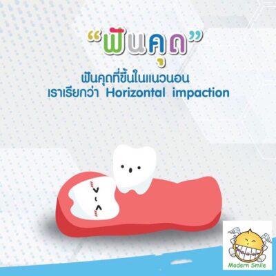 ผ่าฟันคุด-พัทยา-ศรีราชา