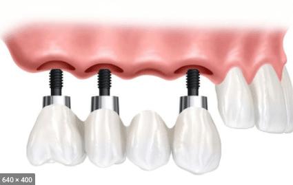 รากฟันเทียมหลายซี่