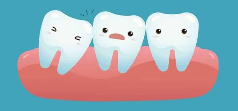 คุณกำลังมีอาการเหล่านี...หลังผ่าฟันคุด