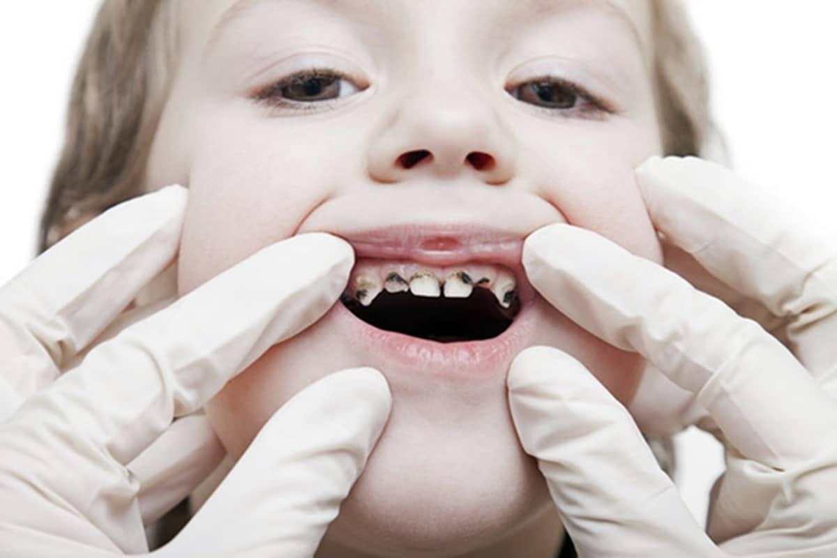 บทความ ที่เกี่ยวข้องกับ สุขภาพช่องปากและฟัน เลือกหัวข้อที่สนใจได้เลย