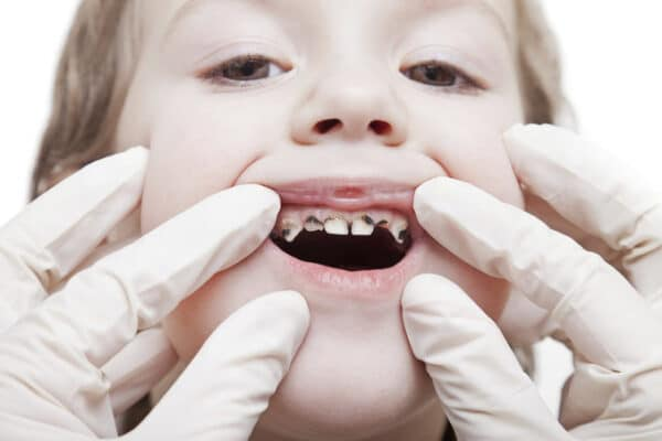 รับมือรักษาปัญหาฟันผุ