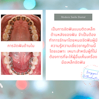 จัดฟันด้านใน ซึ่งไม่มีการรักษาในคลินิก โมเดิร์นสไมล์ เนื่องจาก ทำยาก คนไข้เจ็บ