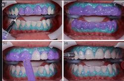 ฟอกสีฟันในคลินิก