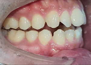 ฟันสบเปิด จัดฟัน ศรีราชา พัทยา