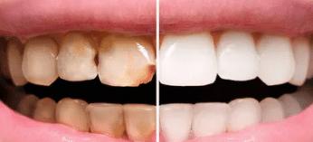 ฟันผุมาก วีเนียร์