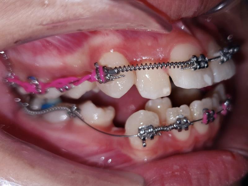 coil spring จัดฟัน