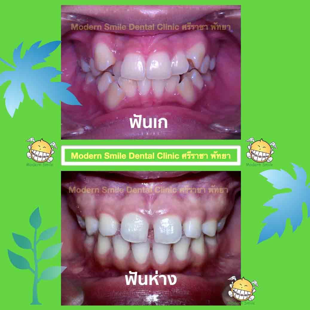 การสบฟันที่ผิดปกติ ชนิด ฟันเก และ ฟันห่าง ต้องได้รับการรักษ ทันตกรรมจัดฟัน