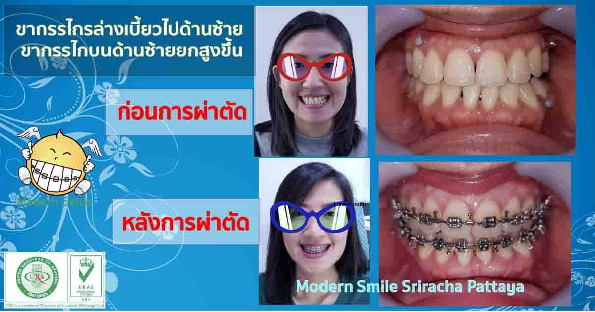 จัดฟันร่วมกับการผ่าตัด ขากรรไกรบนด้านซ้ายสูง ขากรรไกรล่างเบี้ยวไปทางซ้าย