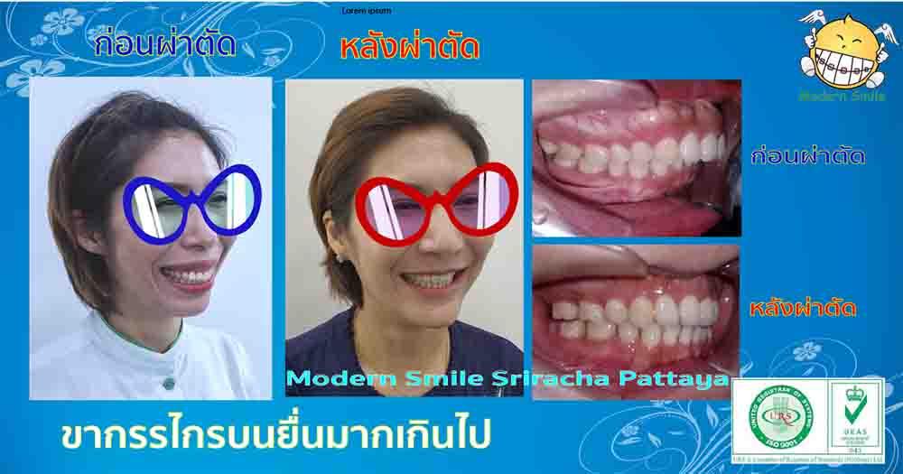จัดฟันร่วมกับการผ่าตัด ขากรรไกรบนยื่นมากเกิน ก่อนและหลังการจัดฟันร่วมกับการผ่าตัด