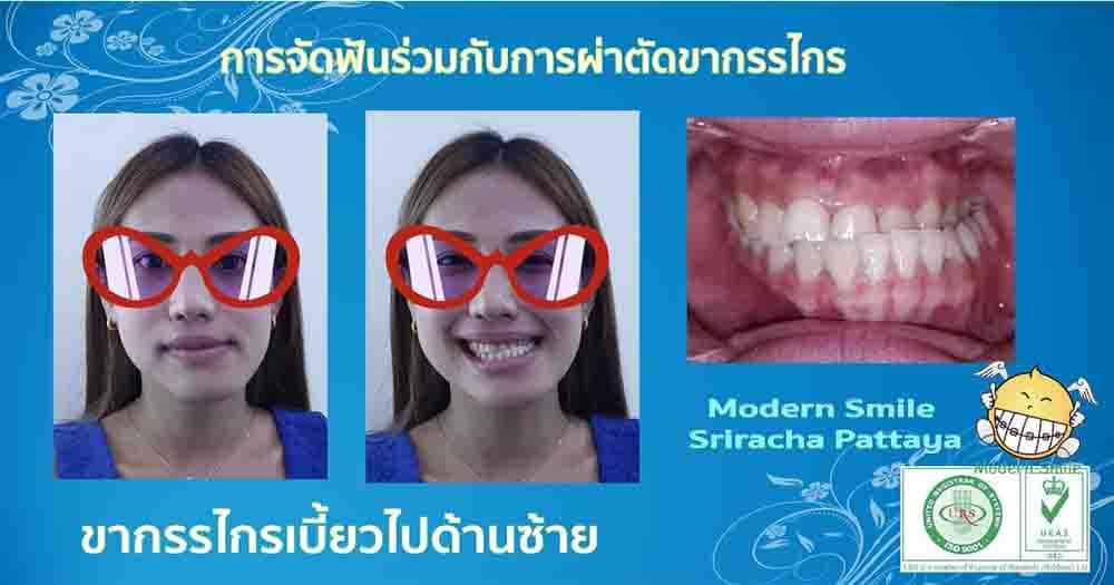 จัดฟันร่วมกับการผ่าตัด ขากรรไกรเบี้ยวไปทางซ้าย ต้องจัดฟันร่วมกับการผ่าตัด