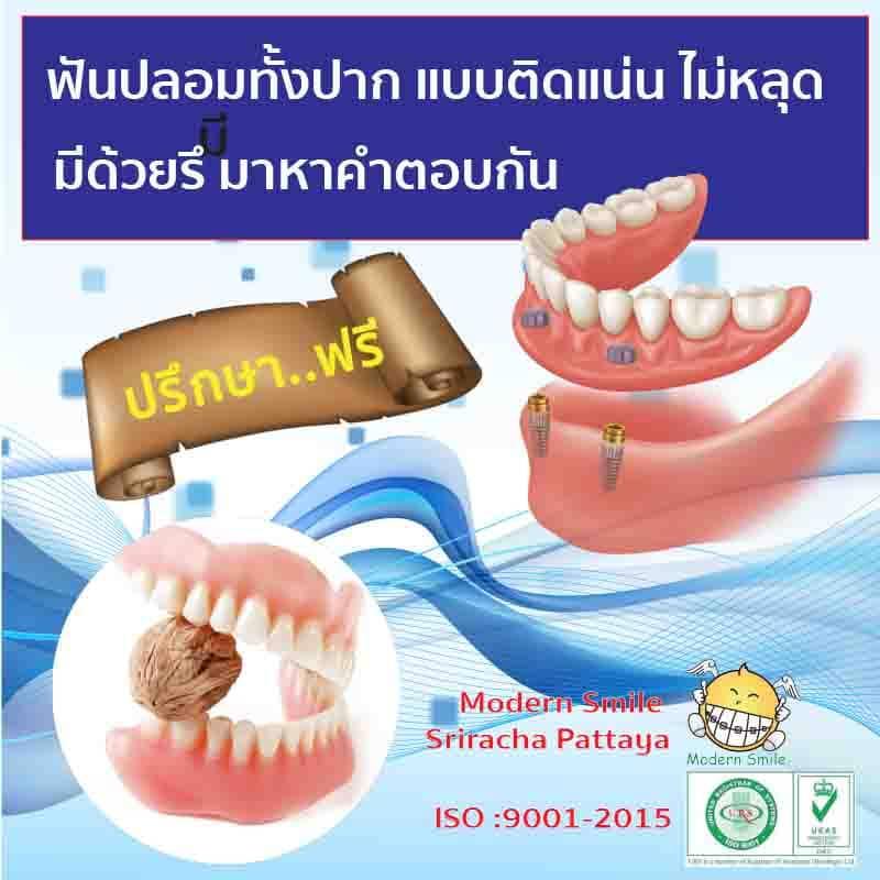 ฟันปลอมทั้งปาก แบบติดแน่นด้วยรากเทียม และ แบบดั้งเดิม