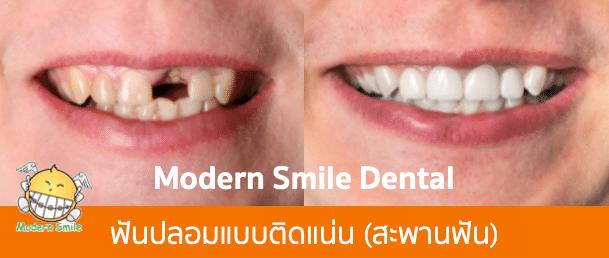 ฟันปลอมแบบติดแน่น แบบสะพานฟัน แก้ไขฟันหน้าหลอ 1 ซี่