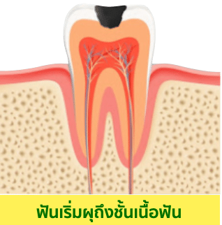 อุดฟัน ฟันผุแบบเป็นหลุมกินเข้าไปจนถึงชั้นเนื้อฟัน