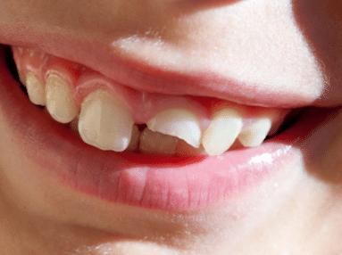 ฟันแตก ทะลุโพรงประสาทฟัน ต้องรักษารากฟัน