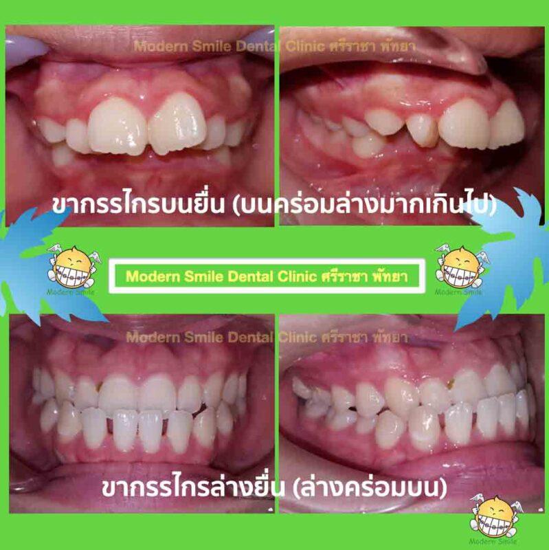 ลักษณะฟันที่ต้องการจัดฟัน ฟันล่างคร่อมฟันบน และฟันบนคร่อมฟันล่างมากเกินไป