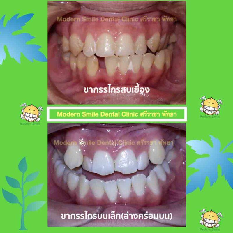 ลักษณะฟันที่ต้องการจัดฟัน ฟันล่างคร่อมฟันบน และ-ขากรรไกรสบเยื้อง